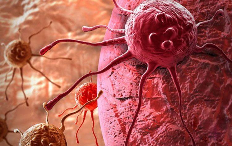 تومور سرطانی با نانوذرات اکسیدمس از بین می رود