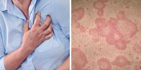 ضایعه پوستی؛ نشانه کمتر شناخته شده حمله قلبی